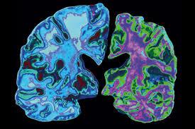 区分早期和晚期阿尔茨海默病的机器学习工具